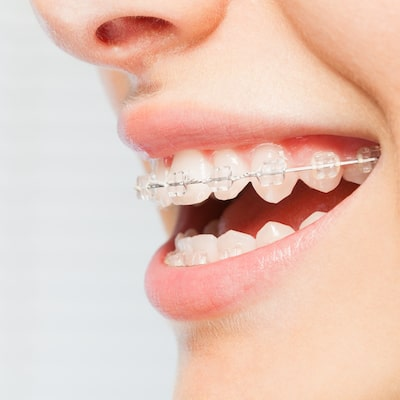 Side profile of a laughing smile with ceramic braces after receiving adult orthodontics