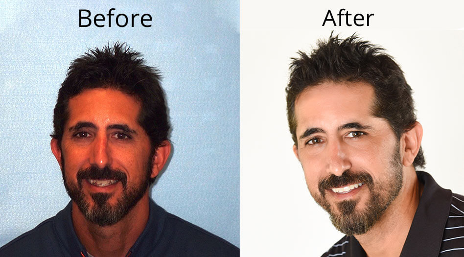 Dave's Before and After headshot