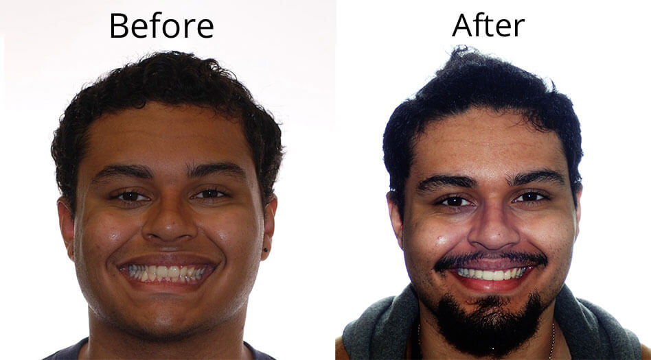 Hector's Before and After headshot