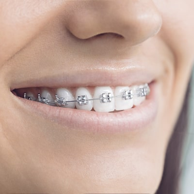 Close up of a female's teeth with metal braces, which are part of our adult orthodontics program